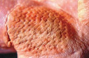 Trong một số trường hợp, các vùng da tổn thương khá nổi bật do nhiễm bệnh Ecoli trên gà.